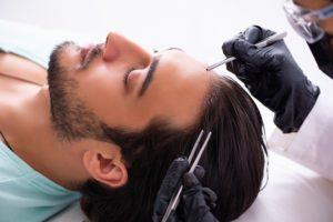 ヒト幹細胞培養液が頭皮にもたらす恩恵